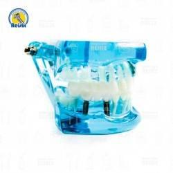 Tipodonto con Patologías Azul